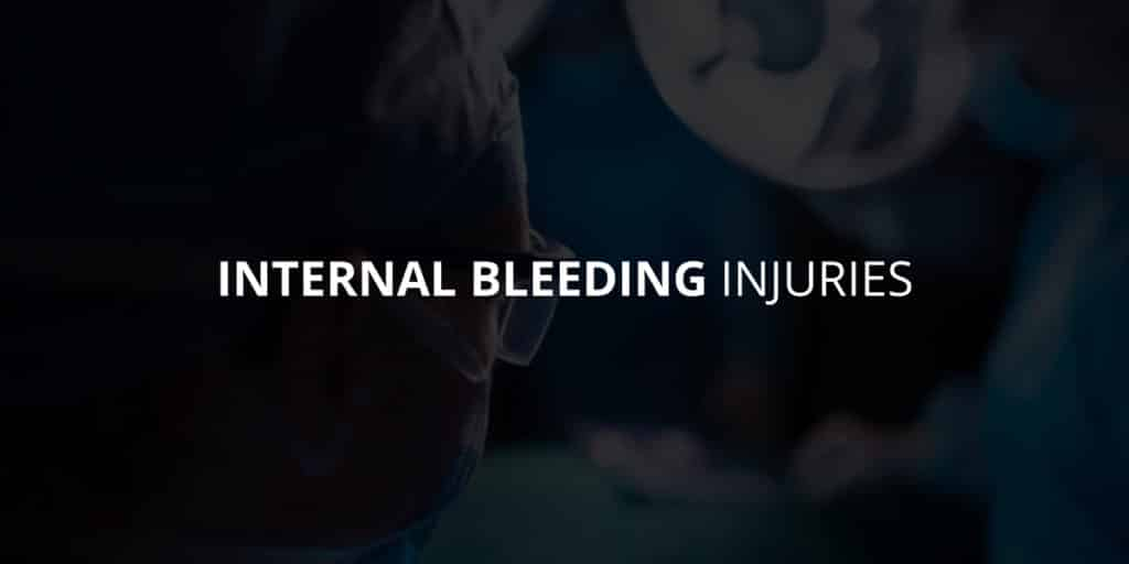 Internal bleeding injuries