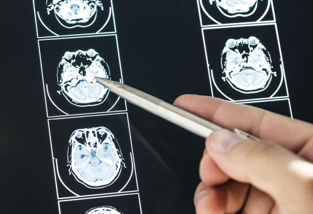 Traumatic Brain Injuries and Their Link to Dementia
